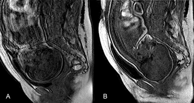 MRI Fetus During Birth - Ami et al PLOS One