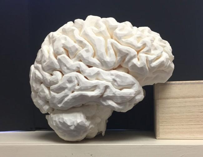 3d printed brain model