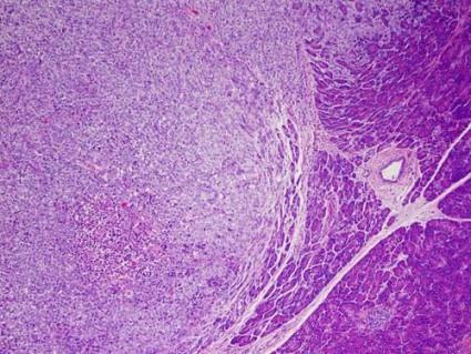 melanoma-425x319.jpg