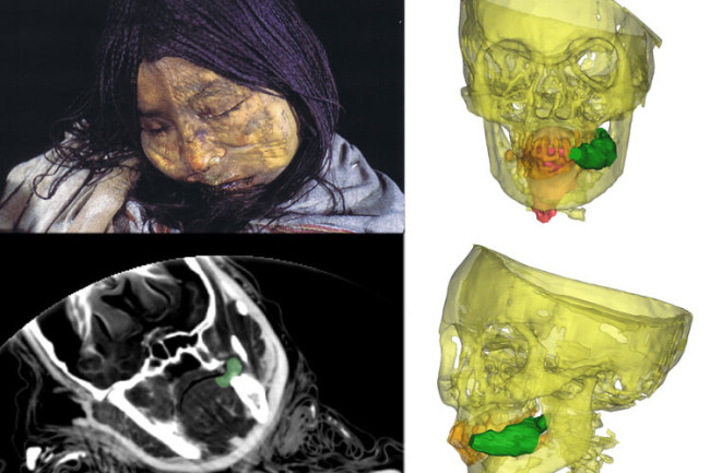 This frozen mummy was found entombed near the top of the Llullaillaco volcano in northwest Argentina. Known as the Llullaillaco Maiden, the 13-year-old was ritually killed in an Inca rite hundreds of years ago. An X-ray image reveals a wad of coca leaves (colored green) clenched between her teeth. (Credit: REDIT: A.S. WILSON ET AL / PNAS 2013 (PHOTOS: JOHAN REINHARD; CT SCANS: DEPT OF FORENSIC MEDICINE/UNIV. OF COPENHAGEN)