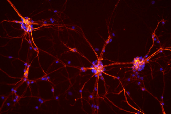 Scientists Connect Neurons in the Lab for the First Time
