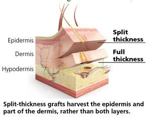 split-thickness