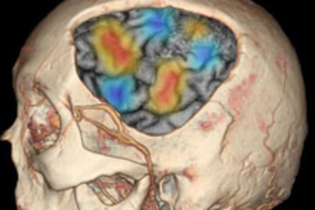 brain-chunk.jpg