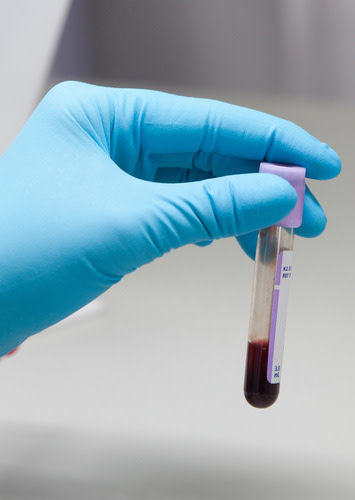 blood-sample.jpg