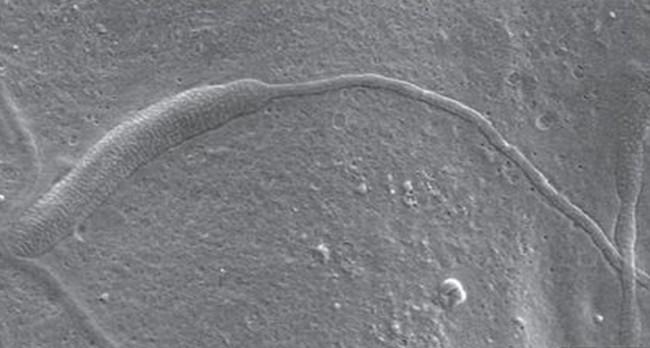 worm-sperm.jpg