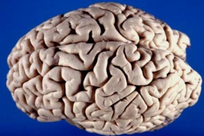 brain-425x289.jpg