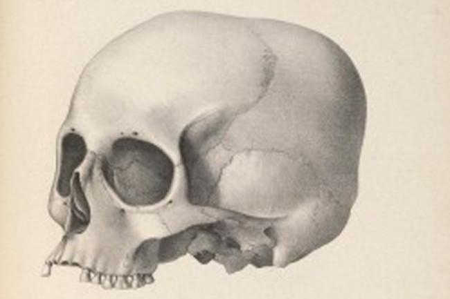 skull size debate morton
