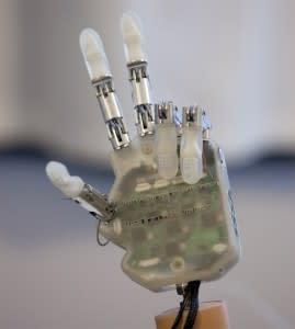 bionic-hand-269x300.jpg