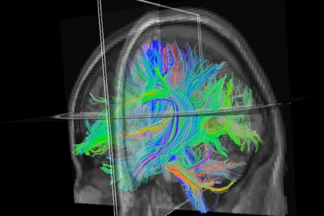 3D-dyslexic-brain.jpg