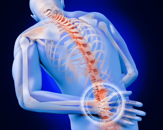 Is your Quadratus Lumborum (lower back muscle) the source of your Back Pain?