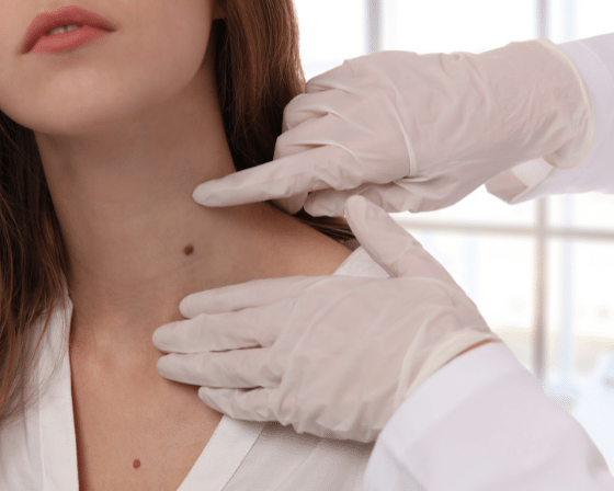 What Are Skin Tags?