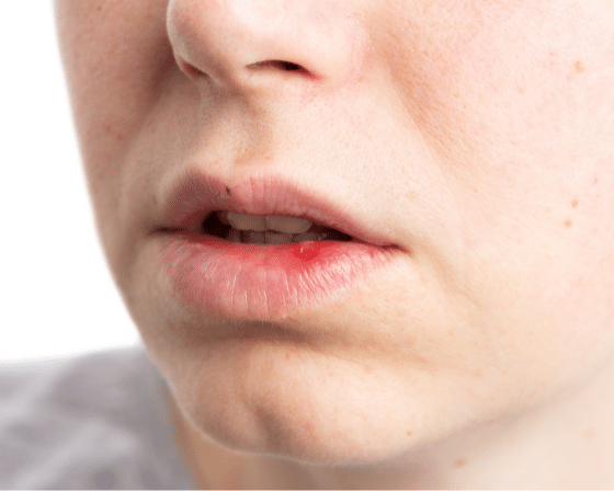 Mouth Ulcers: Their Symptoms, Causes, and Treatment