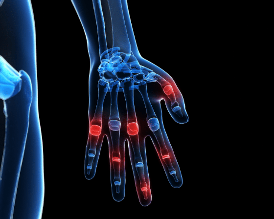 Top Reasons Why You Should Go and See an Orthopedic Hand Surgeon?