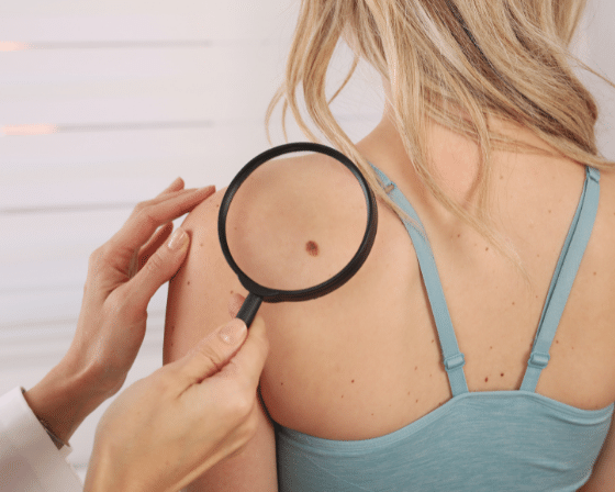 Everything You Need to Know About Moles Removals at Derma Clinic