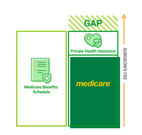 An infographic explaining the Medicare Benefits Schedule (MBS), Medicare and Private health insurance