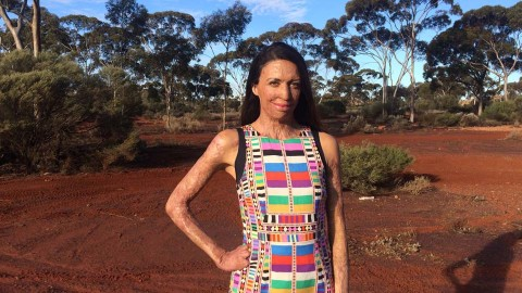 turia pitt standing in the dessert talking through her life lessons