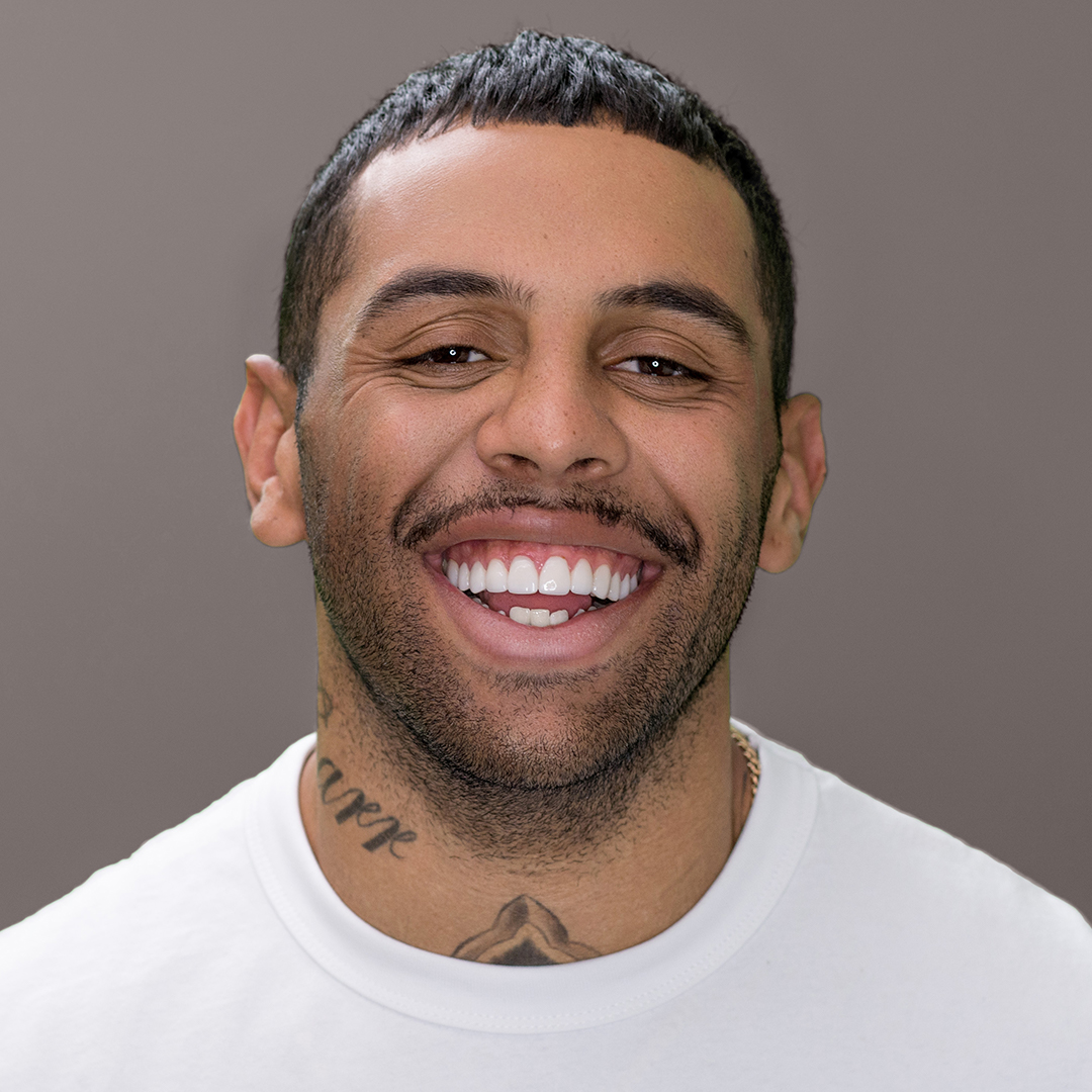 Josh Addo-Carr with porcelain veneers on his teeth at Vogue Dental Studios.