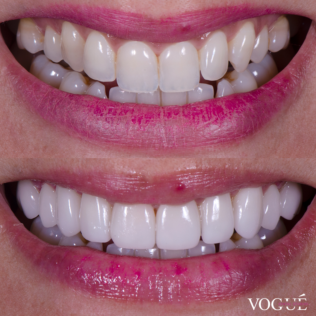 Before and after porcelain veneers at Vogue Dental Studios - front teeth view Michelle