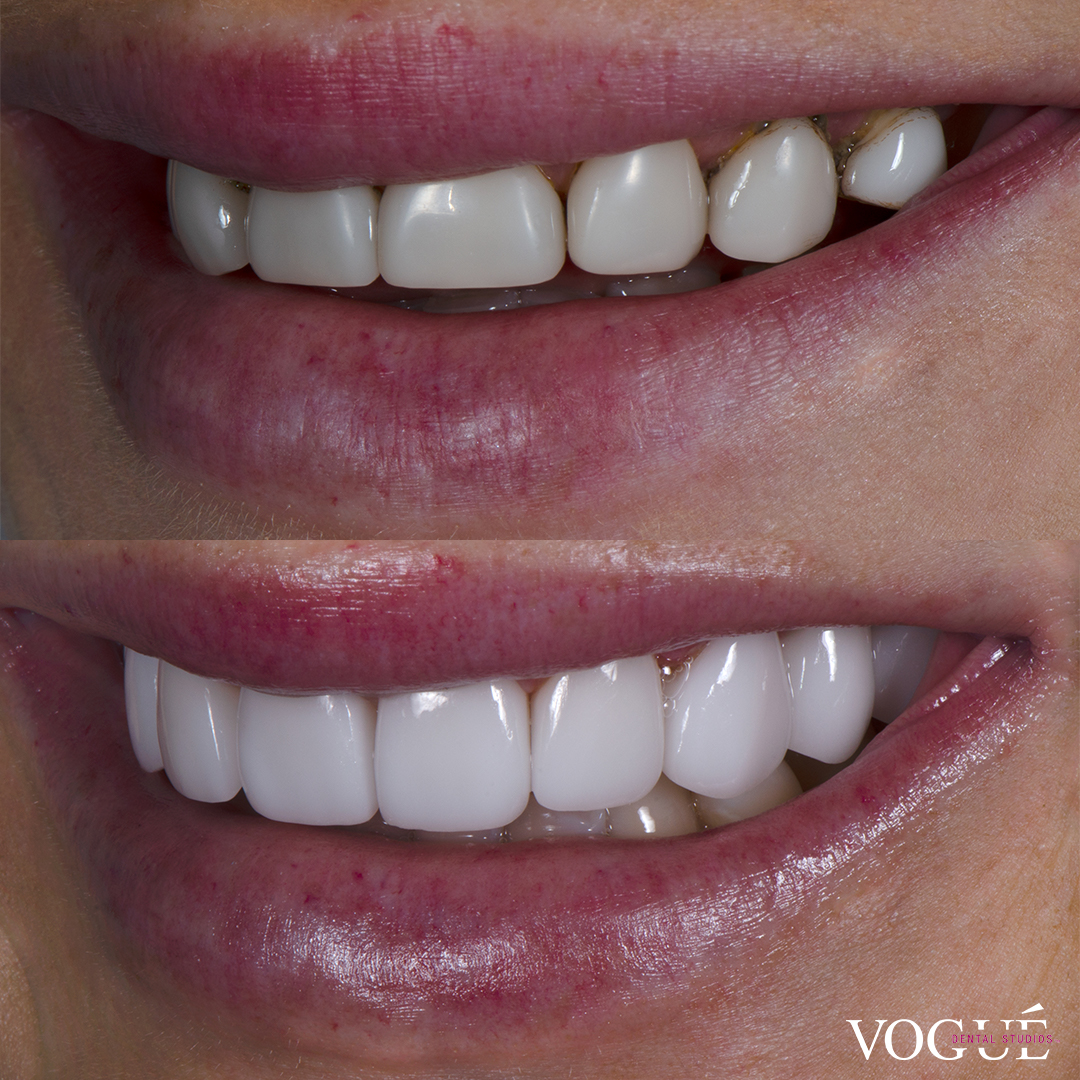 Before and after porcelain veneers smile makeover at Vogue Dental Studios - left teeth view Ines.