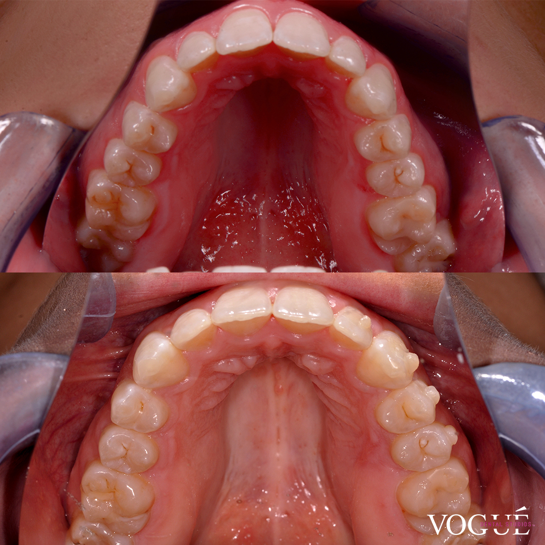 Progress Image of Invisalign Full at Vogue Dental Studios - front teeth view - Amy.