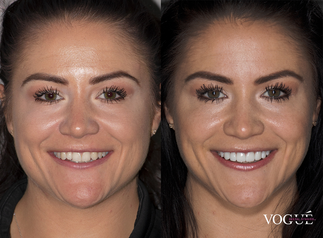 Before and after smile makeover porcelain veneers at Vogue Dental Studios - front face view Amy.