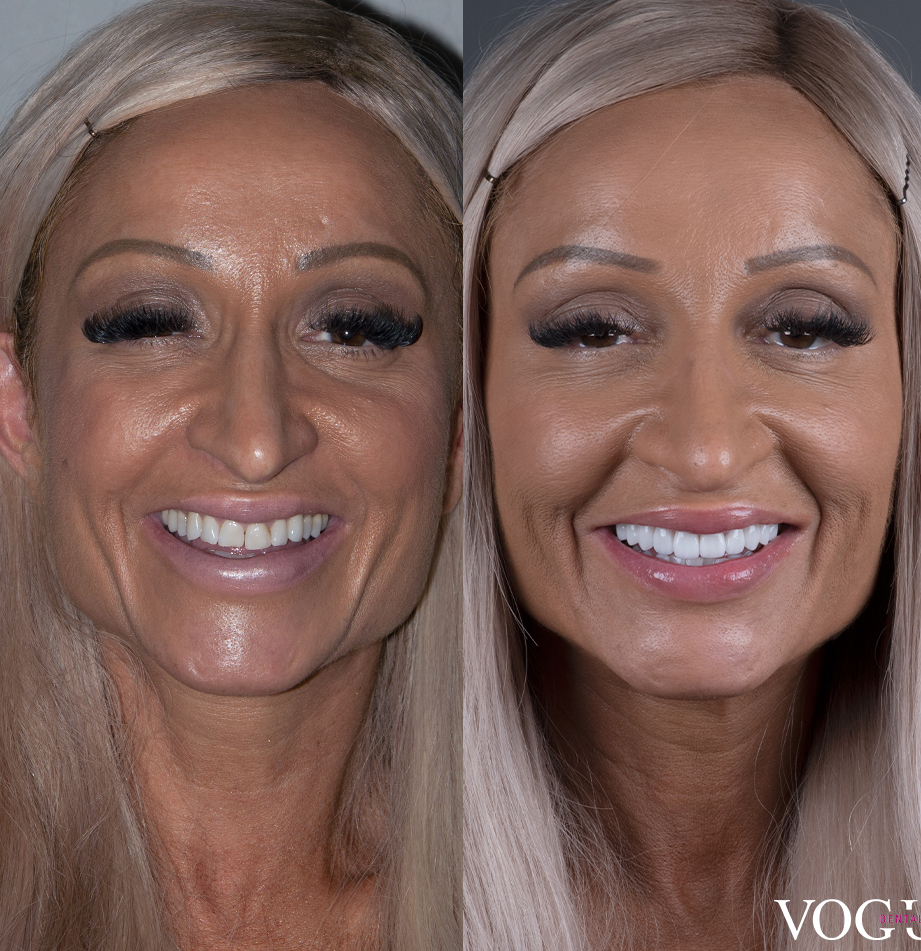 Before and after porcelain veneers at Vogue Dental Studios - Face View Dimitra