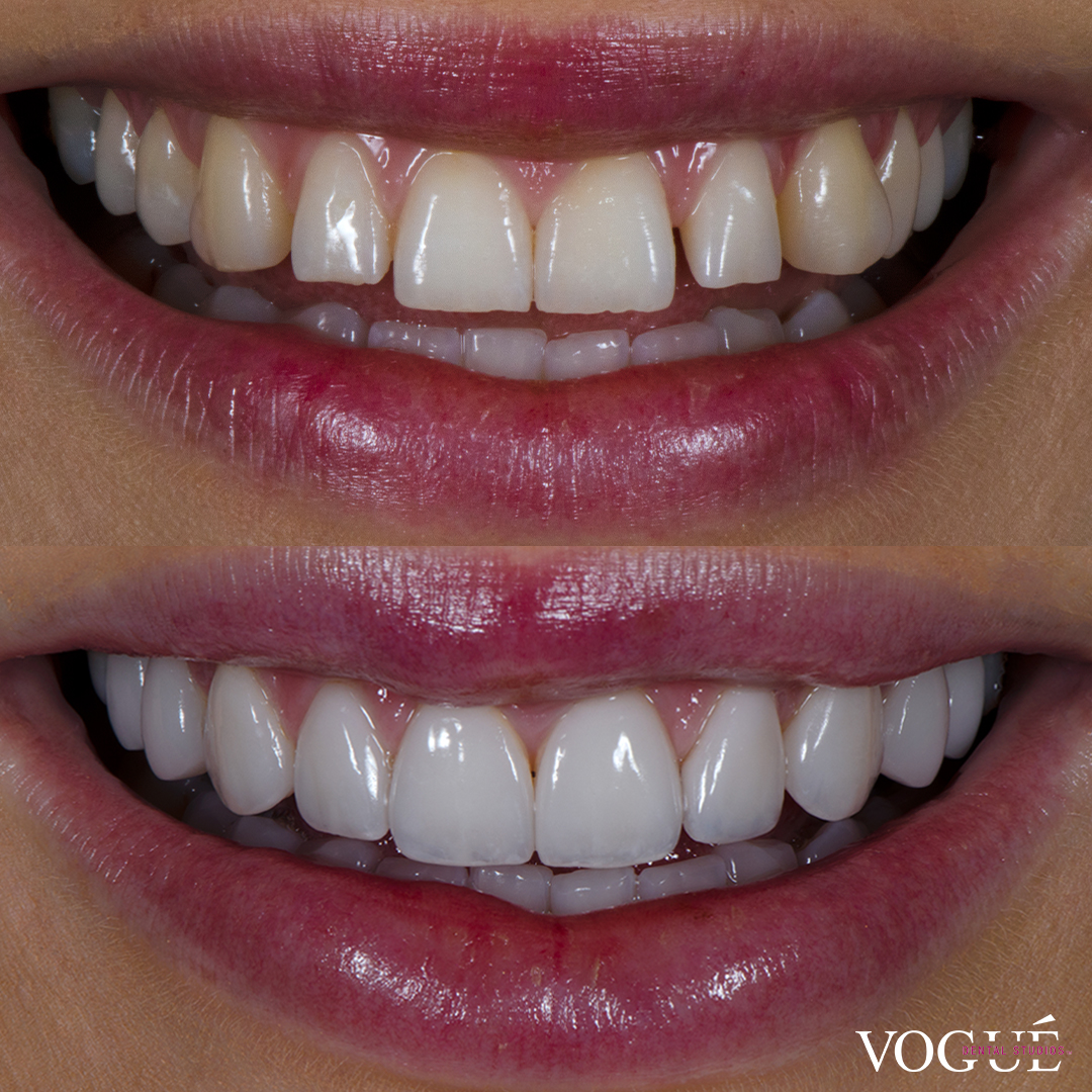 Before and after square teeth with porcelain veneers at Vogue Dental Studios - front teeth view Renee.