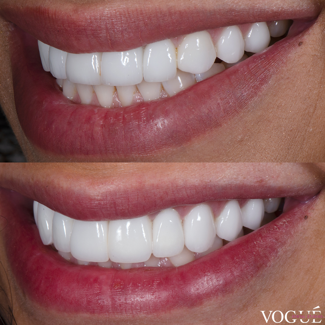 Smile makeover re-done for Venus Behbahani by Dr Dee at Vogue Dental Studios.