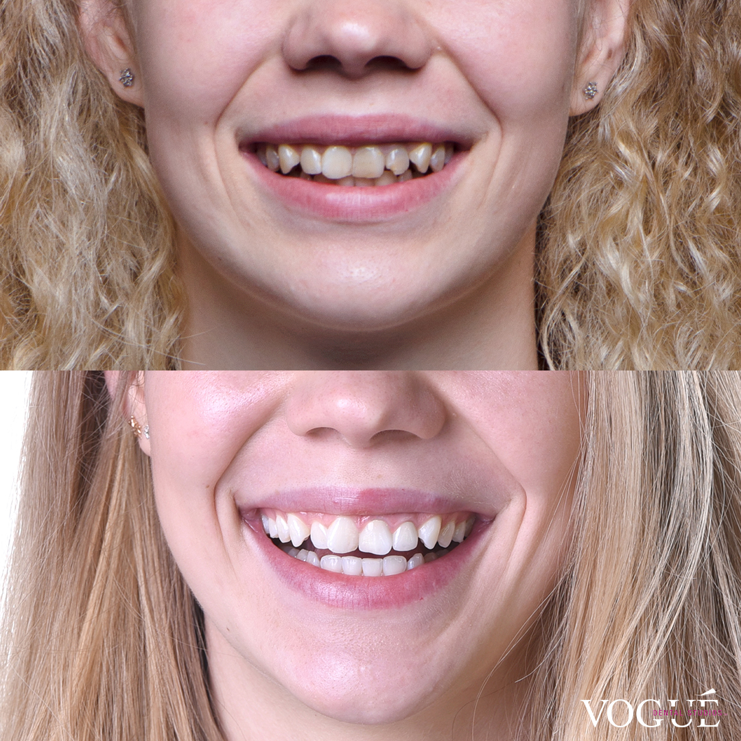 Before and after results of in-chair teeth whitening + x2 porcelain veneers at Vogue Dental Studios - Maria Esipova