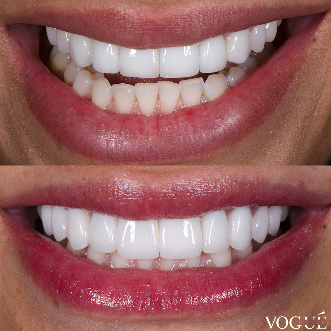 Venus Behbahani revision veneers re-do by Dr Dee at Vogue Dental Studios.