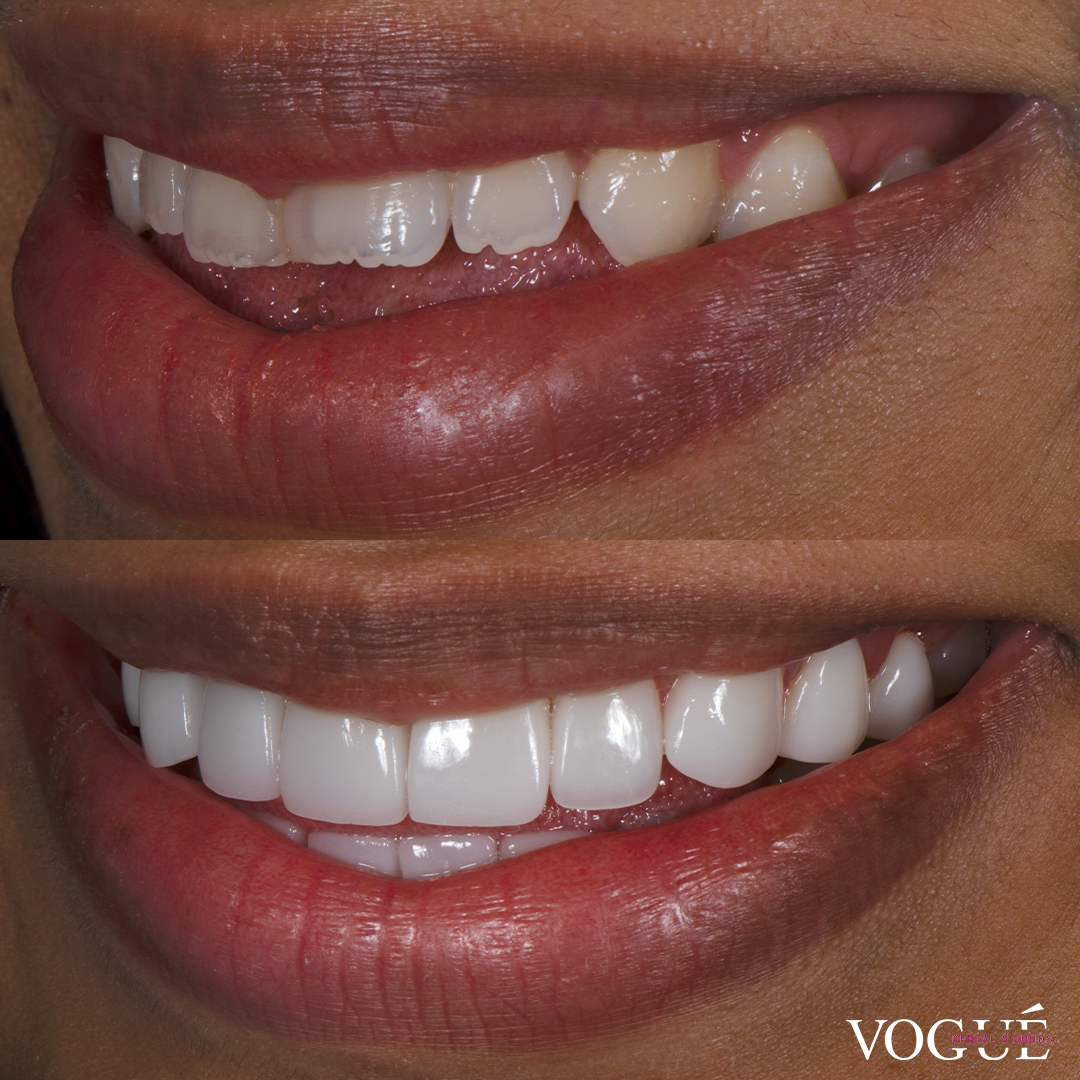 Before and after porcelain veneers smile makeover at Vogue Dental Studios - left teeth view Bhagya.