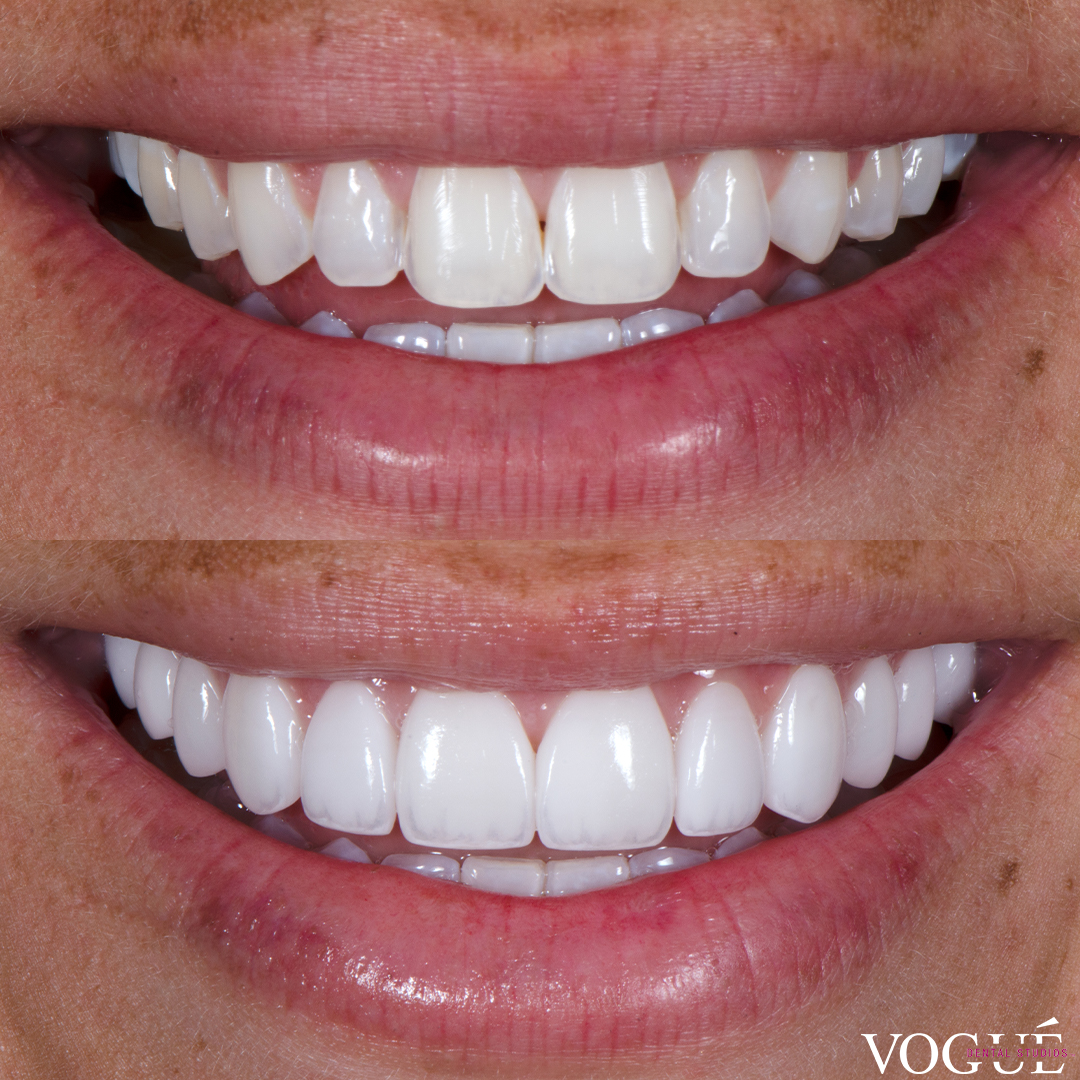 Before and after porcelain veneers at Vogue Dental Studios - Front View Kyah