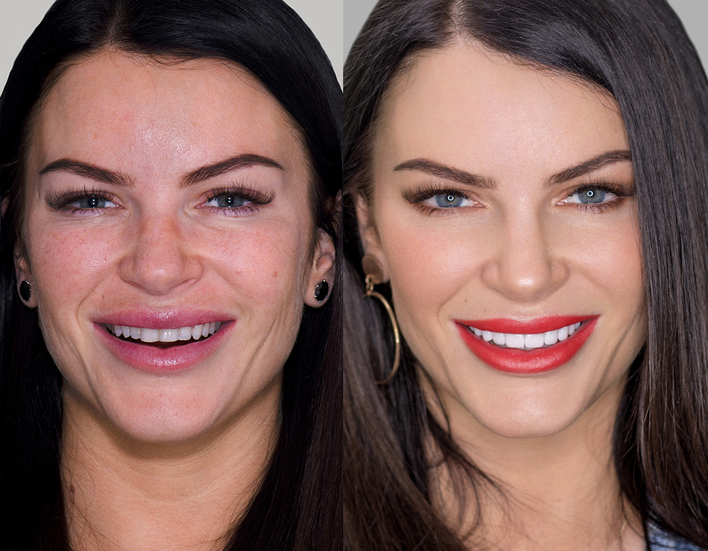 Before and after porcelain veneers smile makeover at Vogue Dental Studios - front face view Tash Herz.