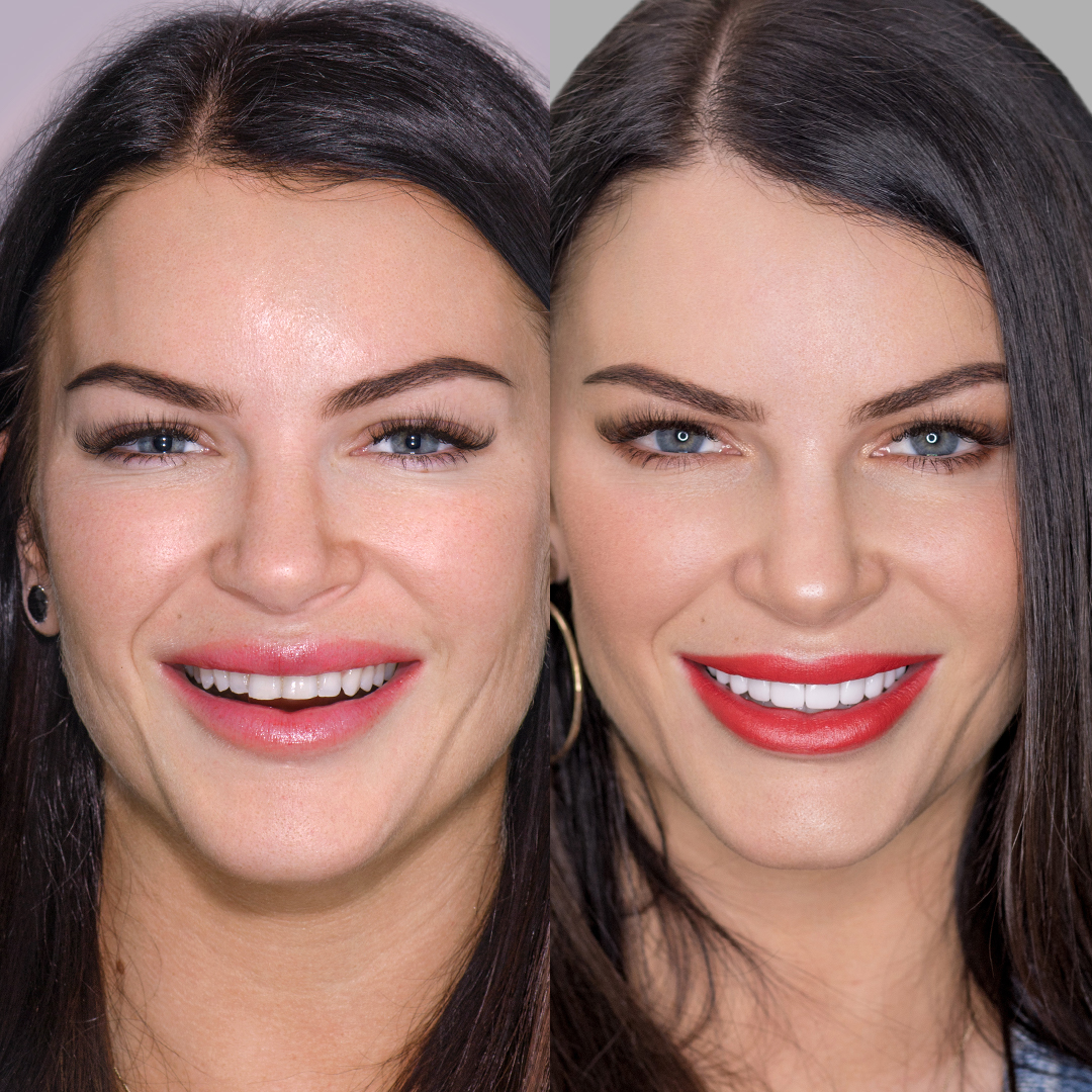 Tash Herz before and after porcelain veneers smile makeover at Vogue Dental Studios.