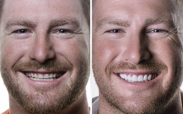 Hollywood smile: Nick Furphy, 31, recently underwent a $25,000 teeth transformation. The former Married At First Sight star is pictured before (L) and after (R) the dental procedure