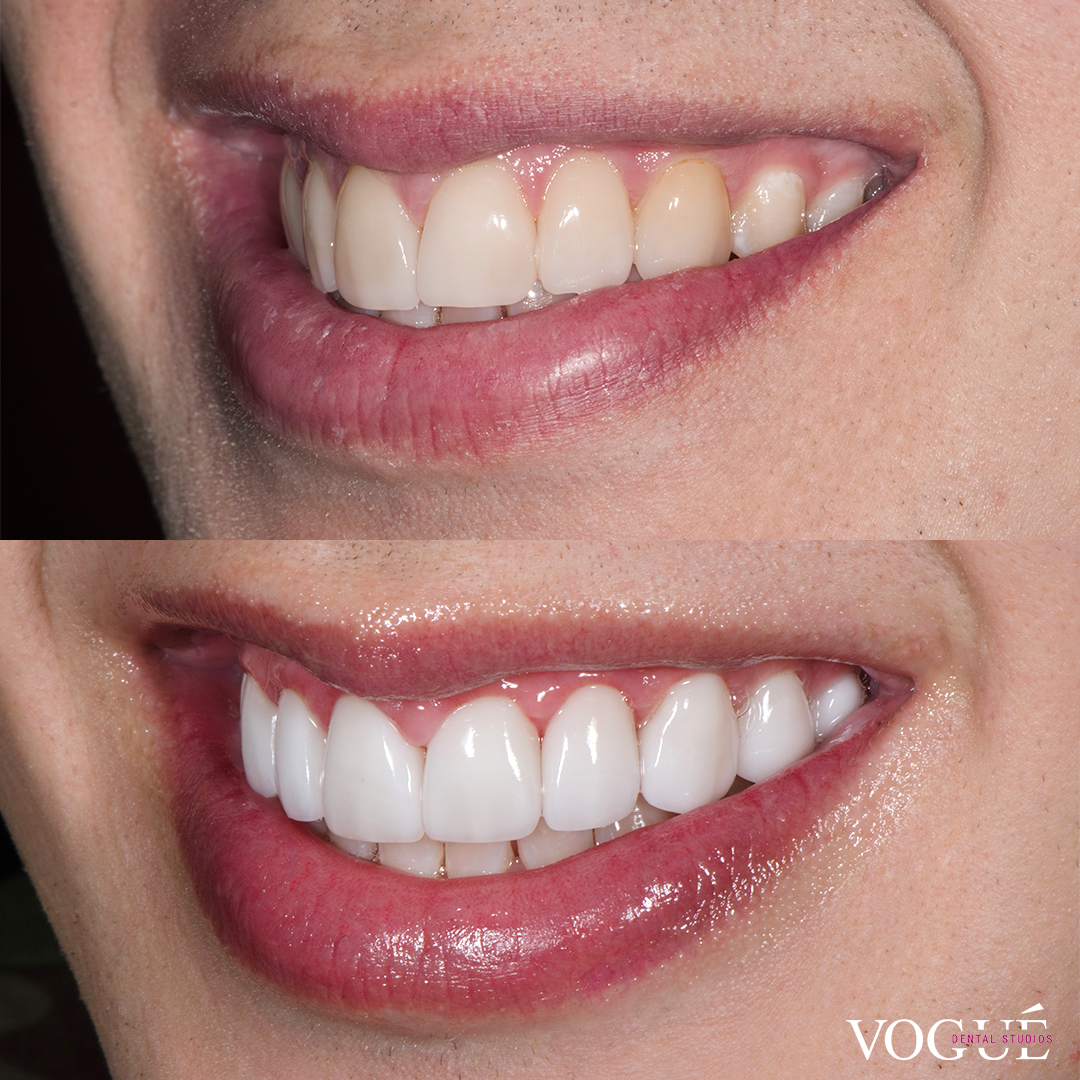 Liam Ferrari before and after porcelain veneers by Dr Dee.