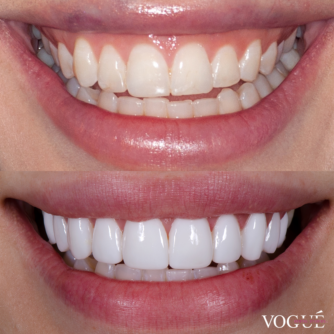 Before and after porcelain veneers at Vogue Dental Studios - front teeth view Farah.