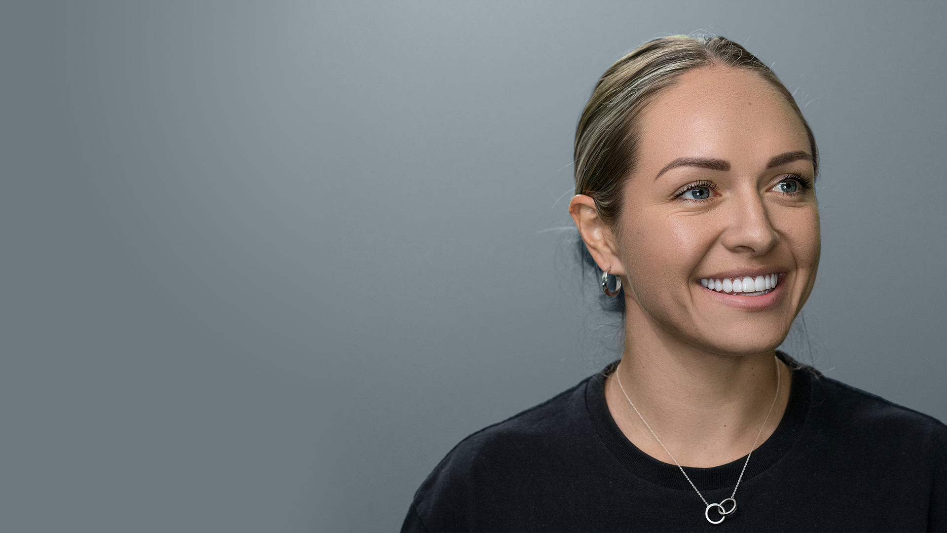 Kyah Simon, Australian soccer player, with porcelain veneers by Dr Dee.