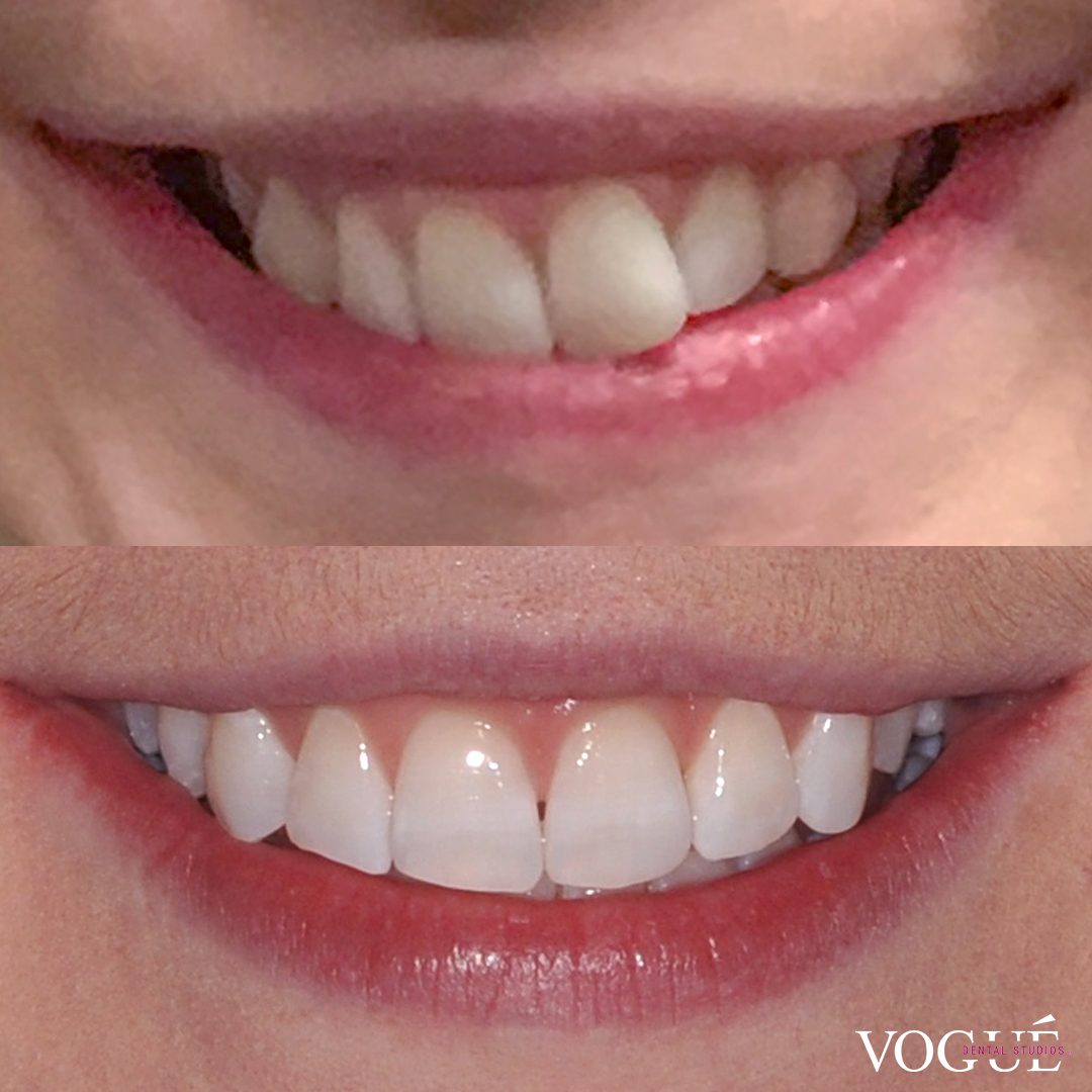 Before and after Invisalign full and teeth whitening at Vogue Dental Studios - front face cropped view Ashea.