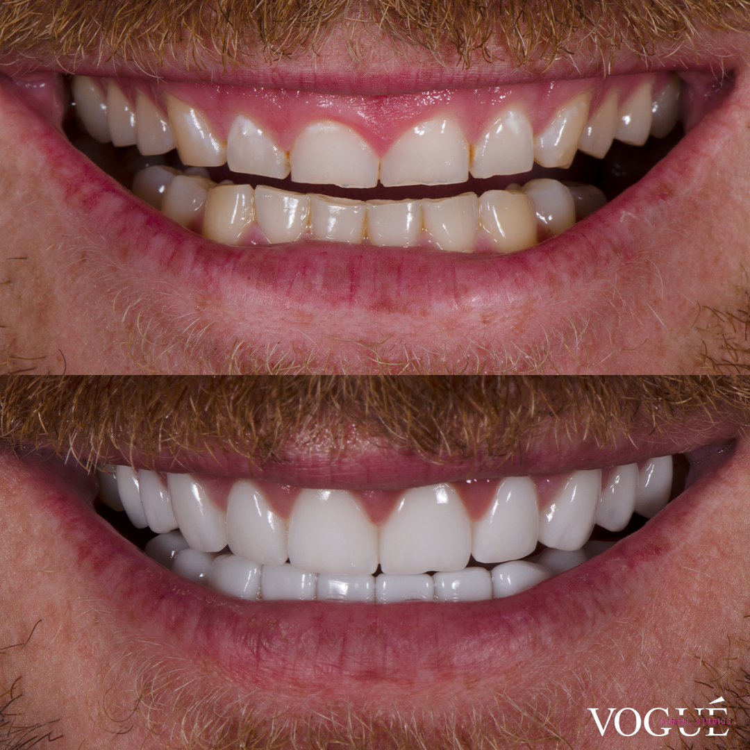 Before and after grinding bruxism with porcelain veneers at Vogue Dental Studios - in-progress Nick.