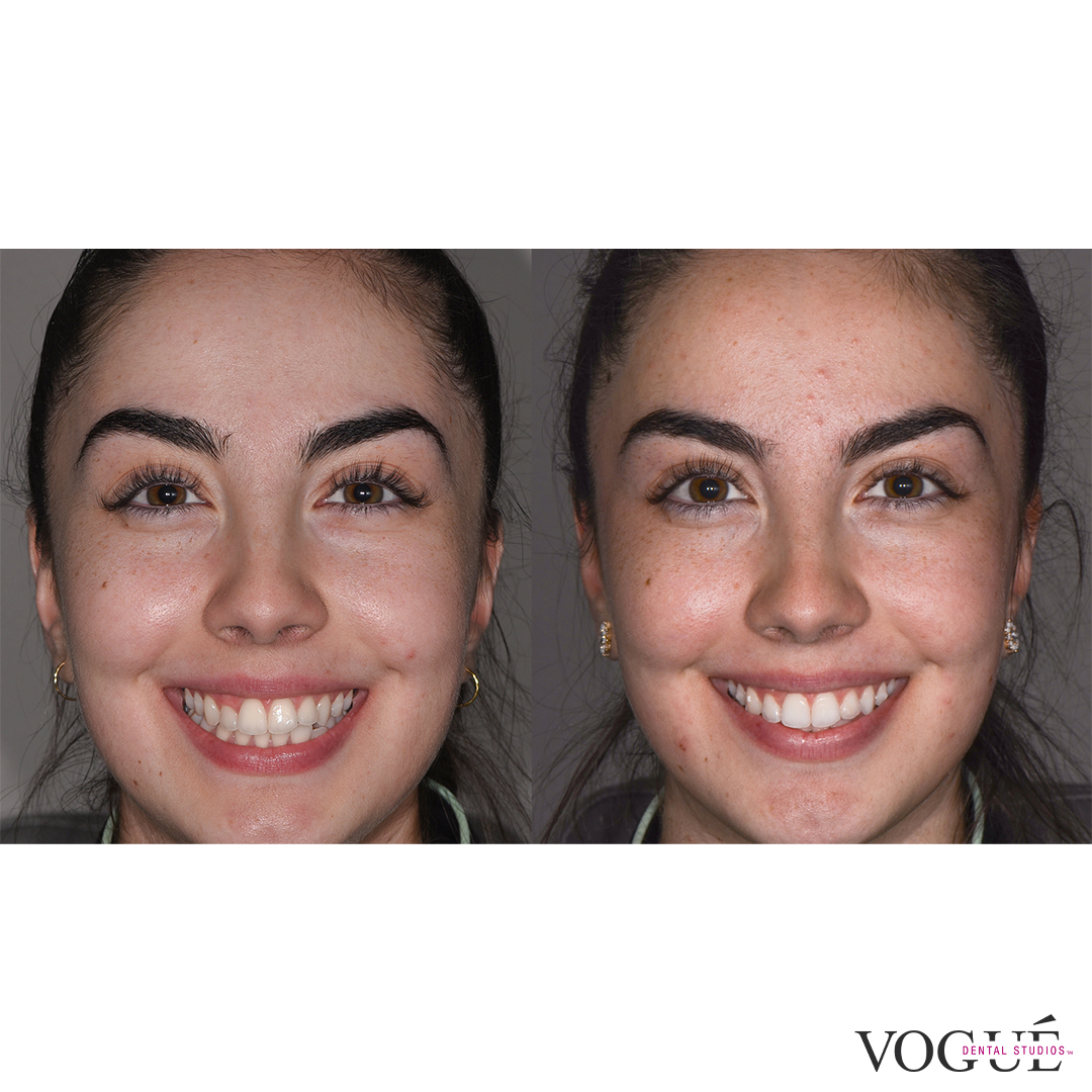 Emily Invisalign and whitening at Vogue Dental Studios - Face smiling view