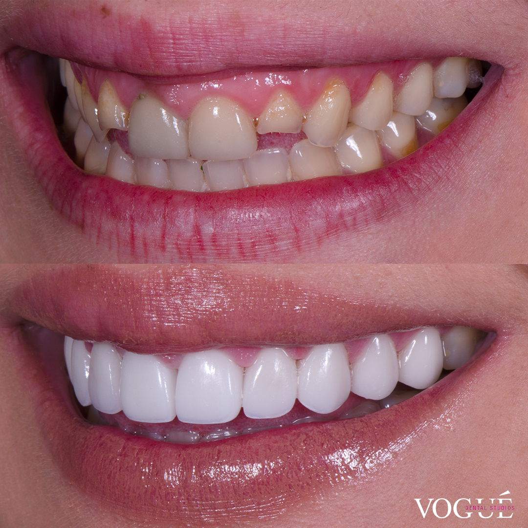 Before and after small teeth with porcelain veneers at Vogue Dental Studios - left teeth view Renee.