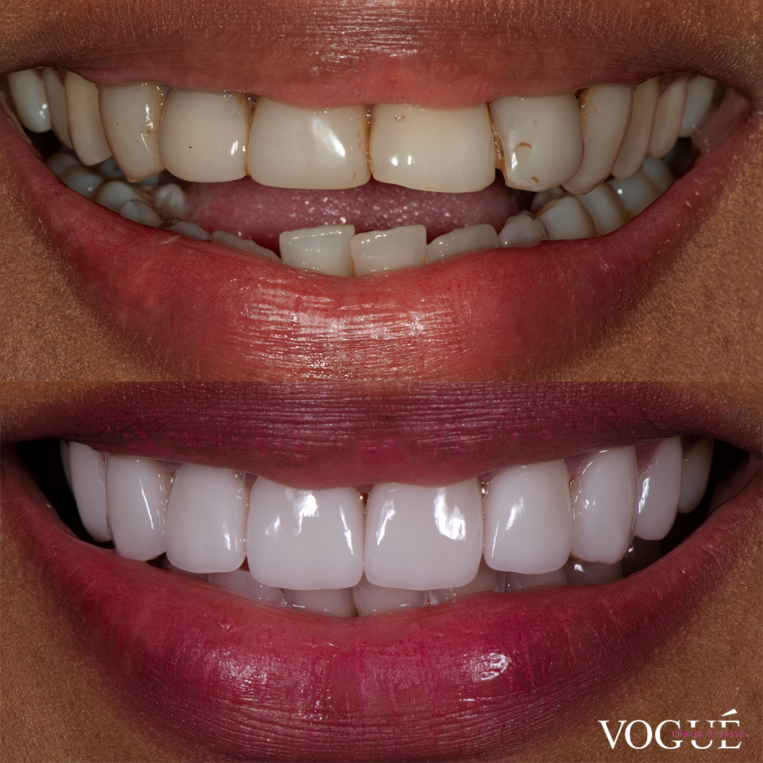 Before and after bulky teeth with porcelain veneers at Vogue Dental Studios - front teeth view Nivanka.