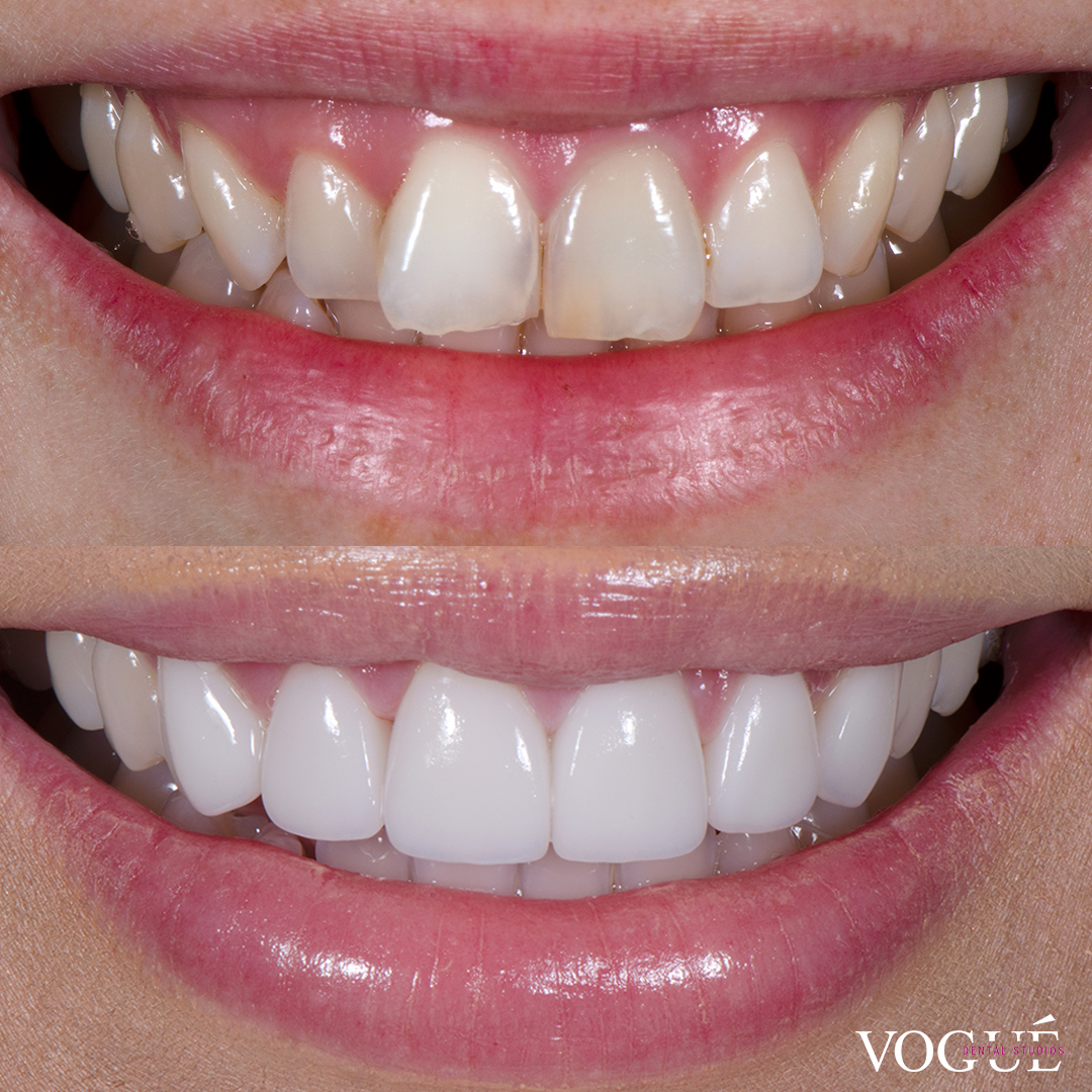 Before and after butterfly teeth with porcelain veneers at Vogue Dental Studios - front teeth view Bianca.