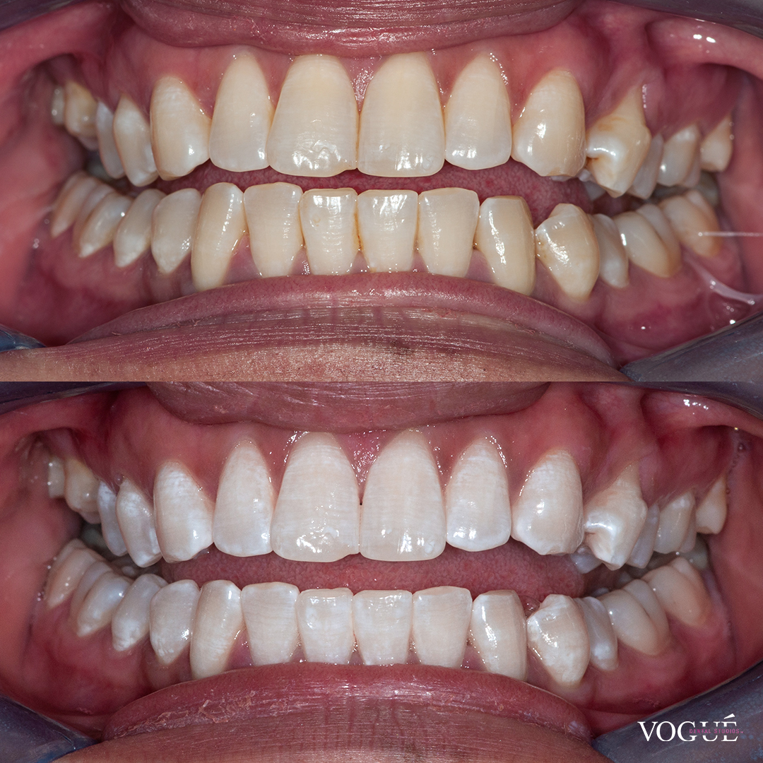 Before and after in chair whitening at Vogue Dental Studios - front retracted view - Judy