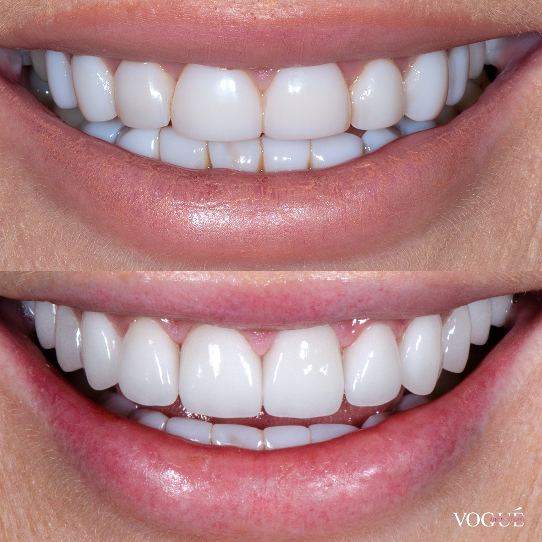 Before and after old composites with porcelain veneers at Vogue Dental Studios - front teeth view Keira.