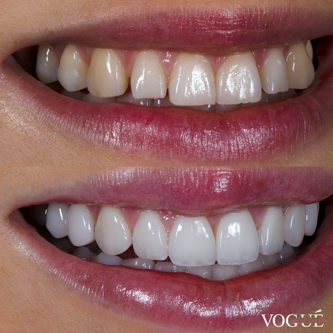 Before and after square teeth with porcelain veneers at Vogue Dental Studios - right teeth view Renee.