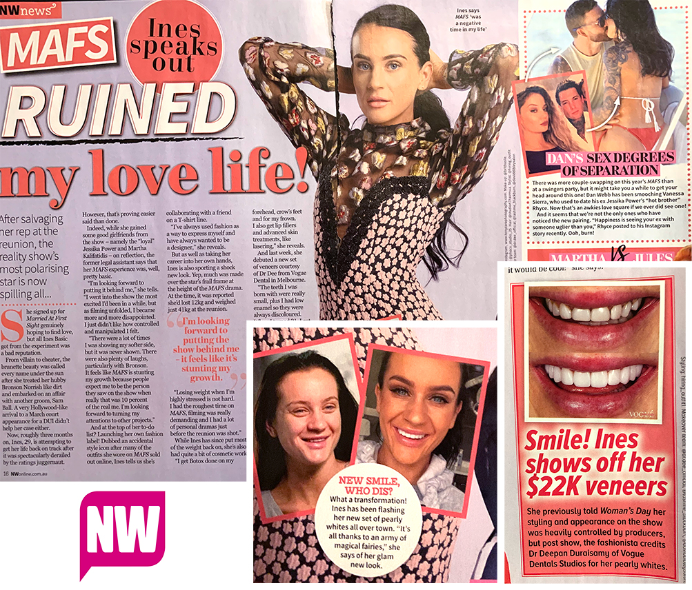 Ines Basic in NW Magazine before and after smile veneers