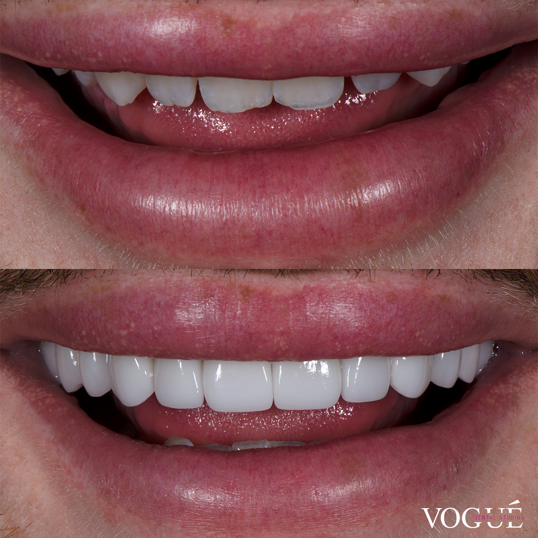 Michael Finch makeup artist before and after porcelain veneers at Vogue Dental Studios front teeth view.