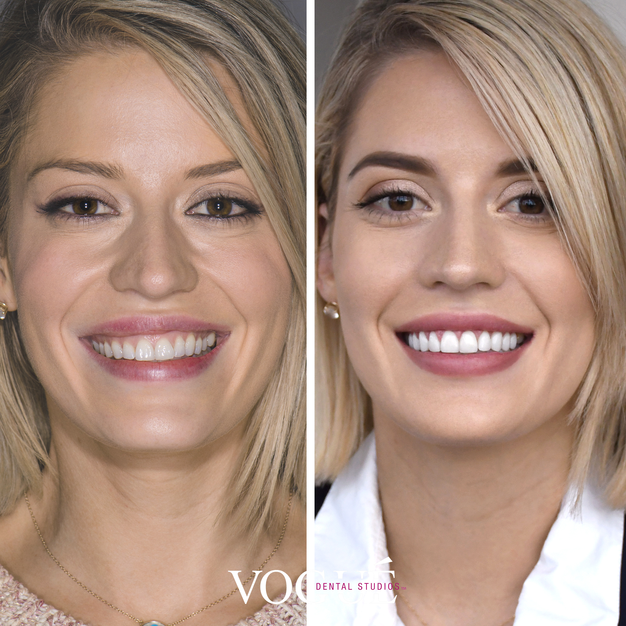 Before and after gummy smile and smile cant correction with porcelain veneers at Vogue Dental Studios - face view Cassie.